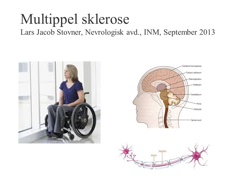Multippel sklerose Lars Jacob Stovner, Nevrologisk avd., INM, September 2013