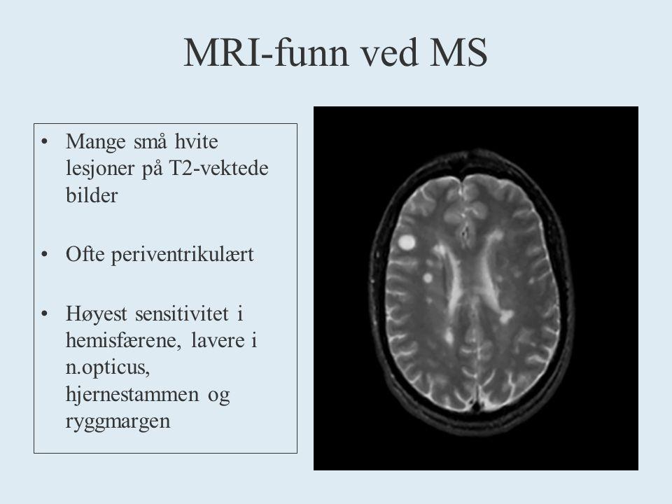 MRI-funn ved MS Mange små hvite lesjoner på T2-vektede bilder Ofte periventrikulært Høyest sensitivitet i hemisfærene, lavere i n.opticus, hjernestammen og ryggmargen