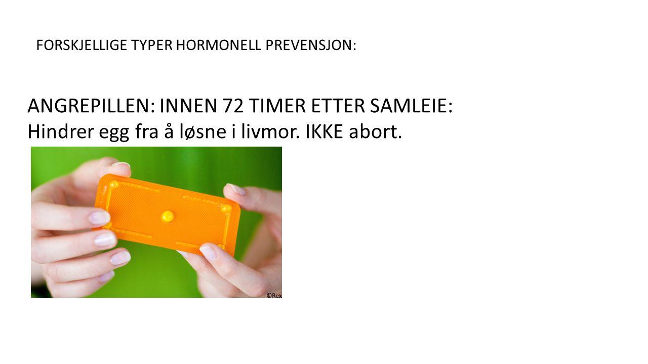 FORSKJELLIGE TYPER HORMONELL PREVENSJON: ANGREPILLEN: INNEN 72 TIMER ETTER SAMLEIE: Hindrer egg fra å løsne i livmor.