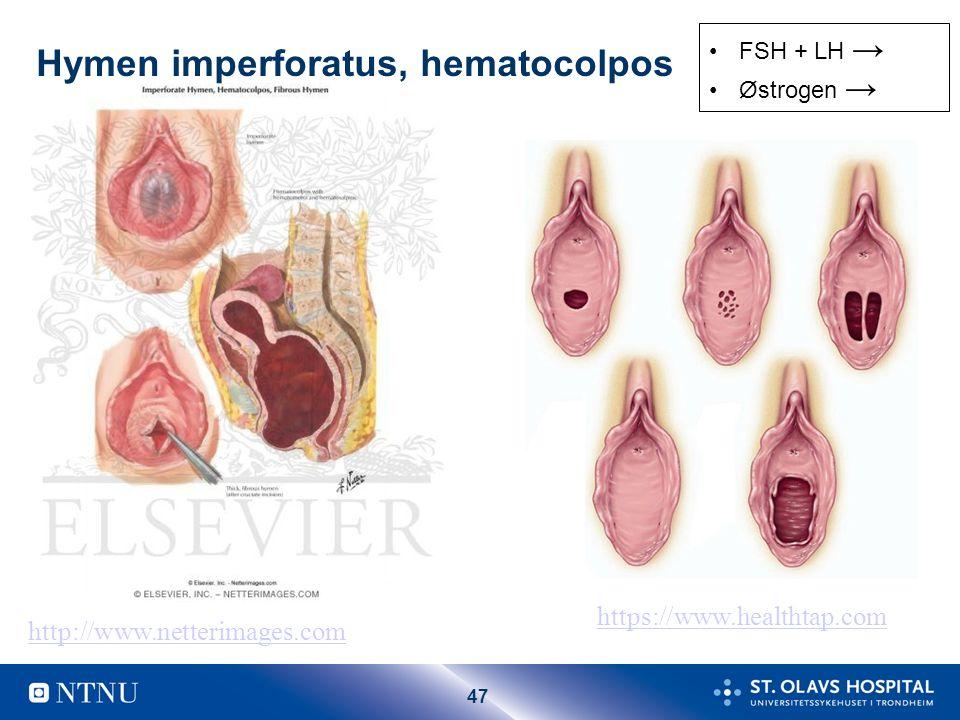 Årsaker til primær amenore Overordnet svikt –FSH+ LH ↓ –Østrogen ↓ Ovariesvikt –Østrogen ↓ –FSH+ LH ↑ Uterin årsak –Normale hormoner