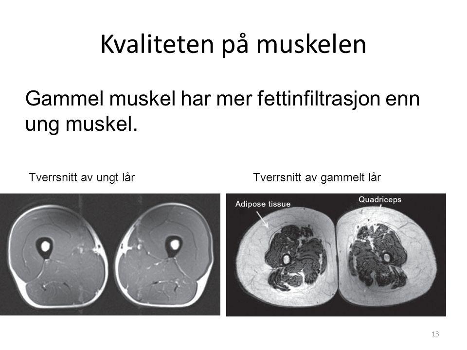 Kvaliteten på muskelen 13 Tverrsnitt av ungt lårTverrsnitt av gammelt lår Gammel muskel har mer fettinfiltrasjon enn ung muskel.