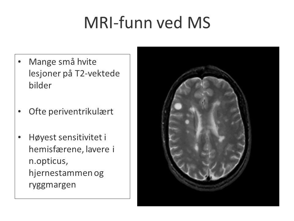 MRI-funn ved MS Mange små hvite lesjoner på T2-vektede bilder Ofte periventrikulært Høyest sensitivitet i hemisfærene, lavere i n.opticus, hjernestamm