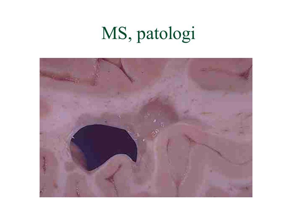 MS, patologi