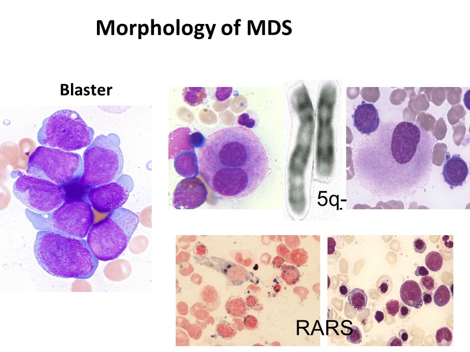 Blaster Morphology of MDS RARS 5q-