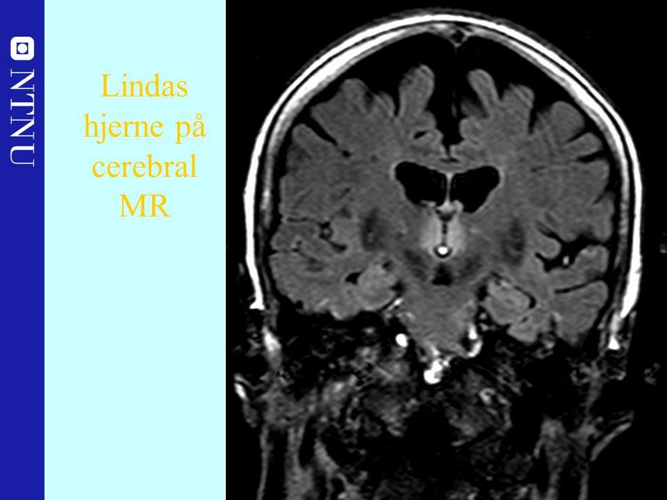 33 Lindas hjerne på cerebral MR