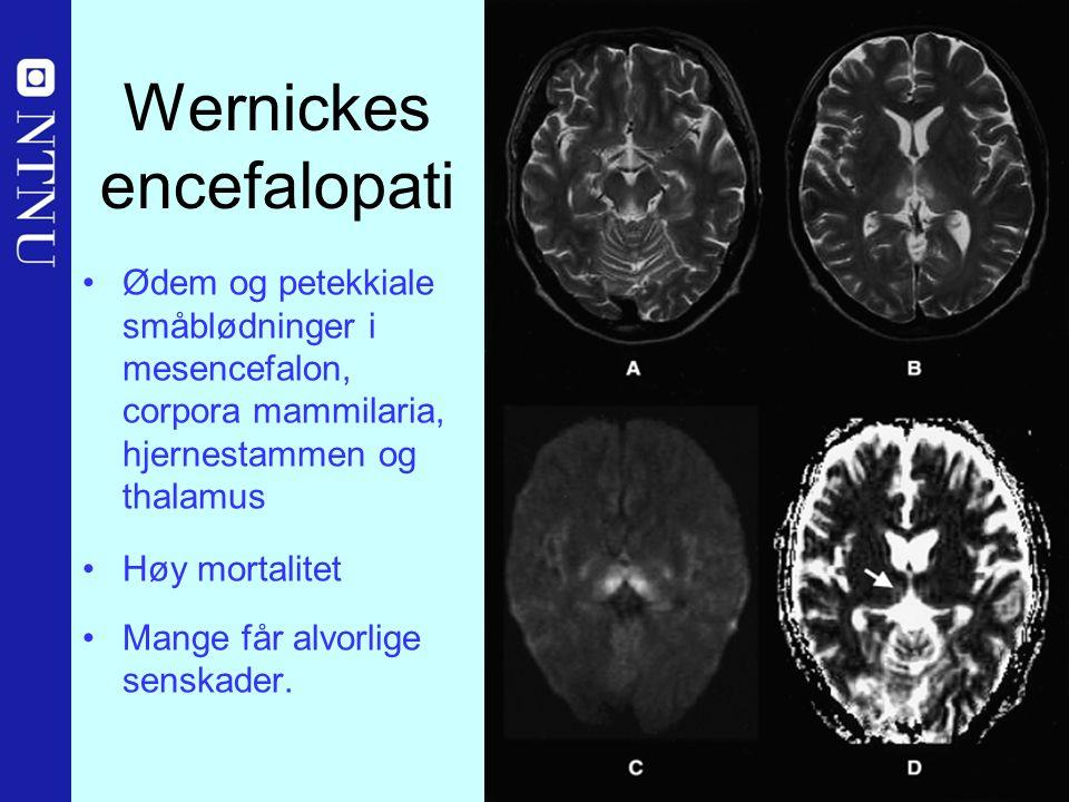 34 Wernickes encefalopati Ødem og petekkiale småblødninger i mesencefalon, corpora mammilaria, hjernestammen og thalamus Høy mortalitet Mange får alvorlige senskader.