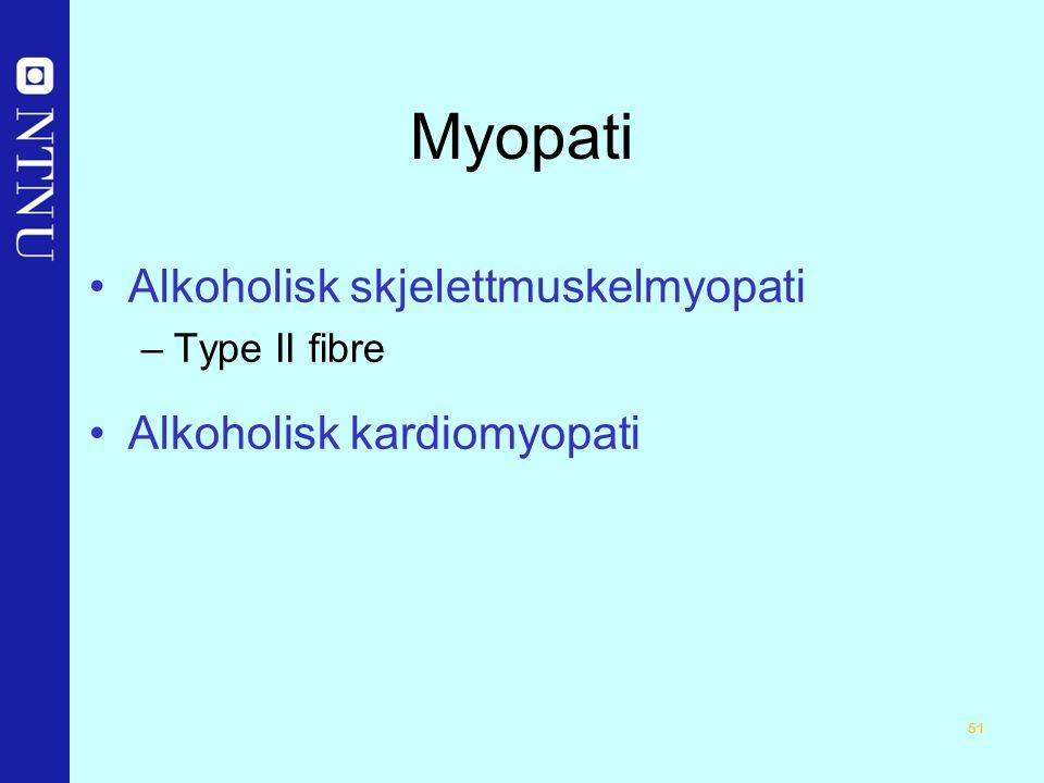 51 Myopati Alkoholisk skjelettmuskelmyopati –Type II fibre Alkoholisk kardiomyopati