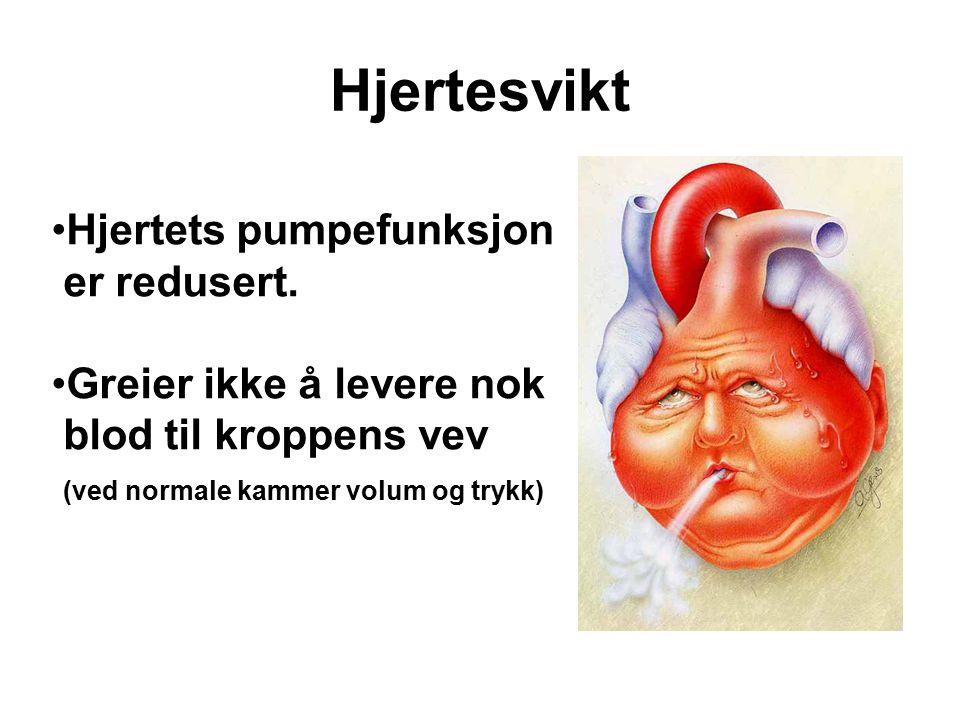 Hjertesvikt Hjertets pumpefunksjon er redusert.