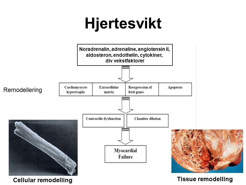 Noradrenalin, adrenaline, angiotensin II, aldosteron, endothelin, cytokiner, div vekstfaktorer Cellular remodelling Tissue remodelling Hjertesvikt Remodellering