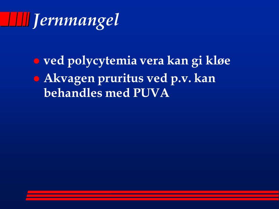 Jernmangel l ved polycytemia vera kan gi kløe l Akvagen pruritus ved p.v. kan behandles med PUVA
