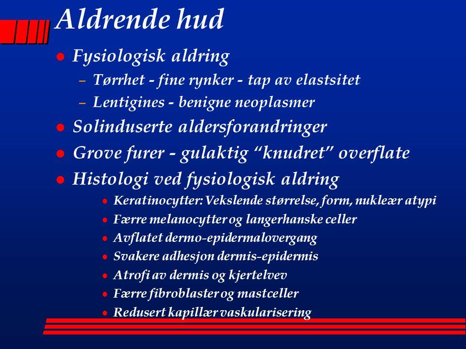 Kløe hos eldre l Kløe hos minst 50% > 60 år kan skyldes  Latent hudlidelse - inflammatoriske tilstander  Underliggende systemsykdom  Medikamentell bivirkning  Senil pruritus - Xerose