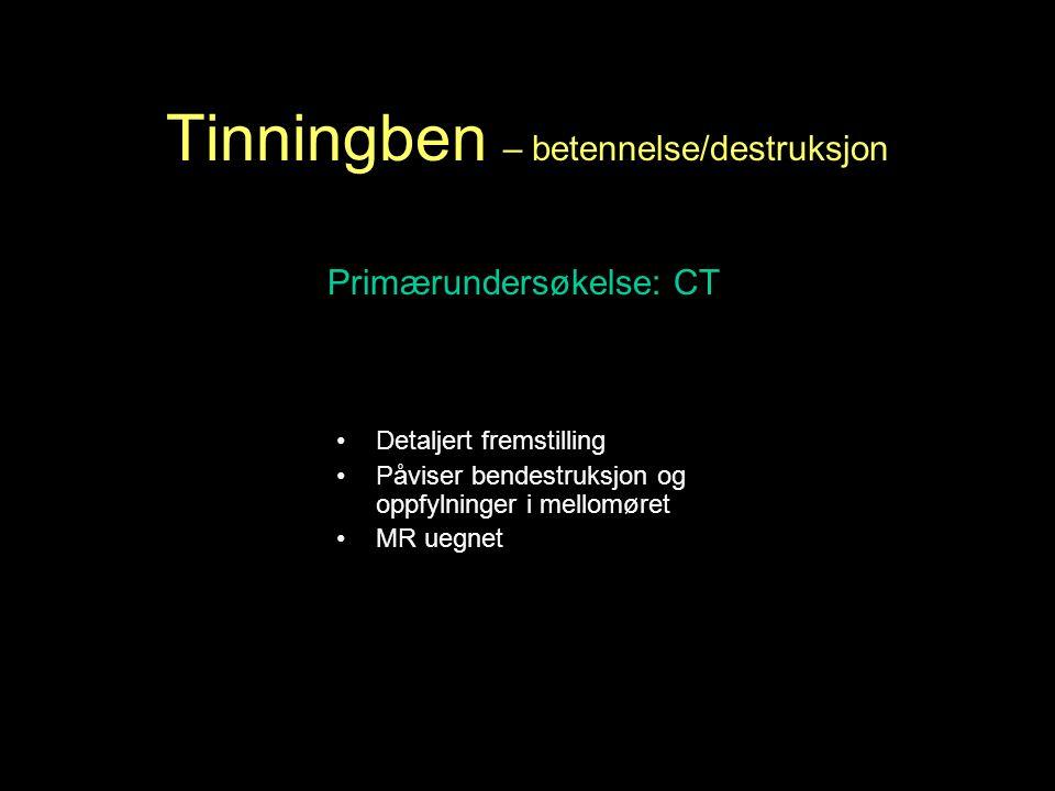 Primærundersøkelse: CT Detaljert fremstilling Påviser bendestruksjon og oppfylninger i mellomøret MR uegnet Tinningben – betennelse/destruksjon