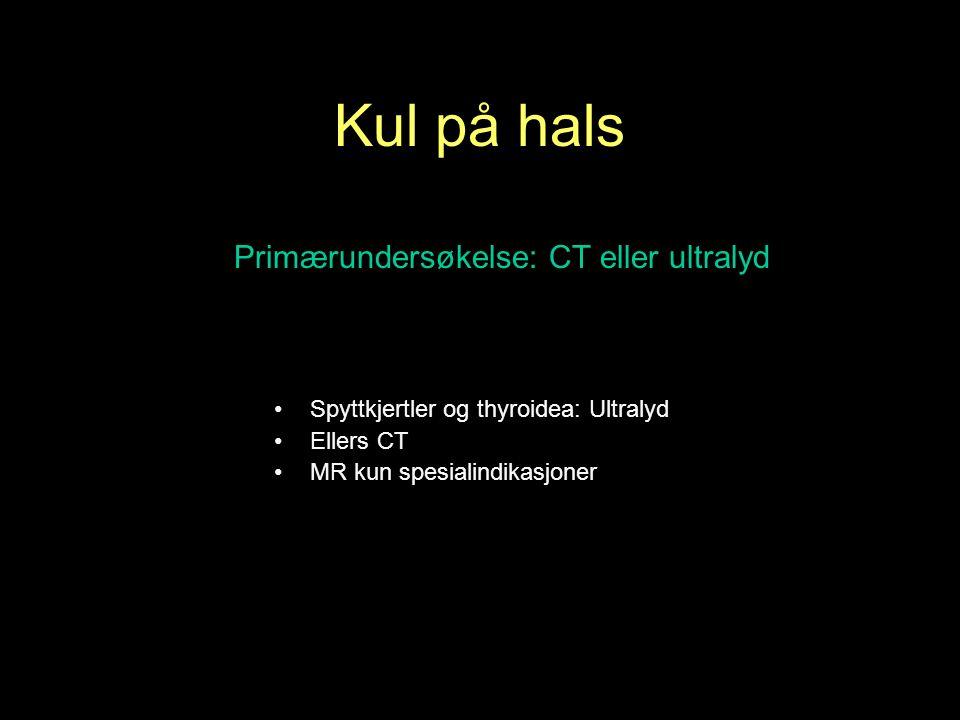 Primærundersøkelse: CT eller ultralyd Spyttkjertler og thyroidea: Ultralyd Ellers CT MR kun spesialindikasjoner Kul på hals