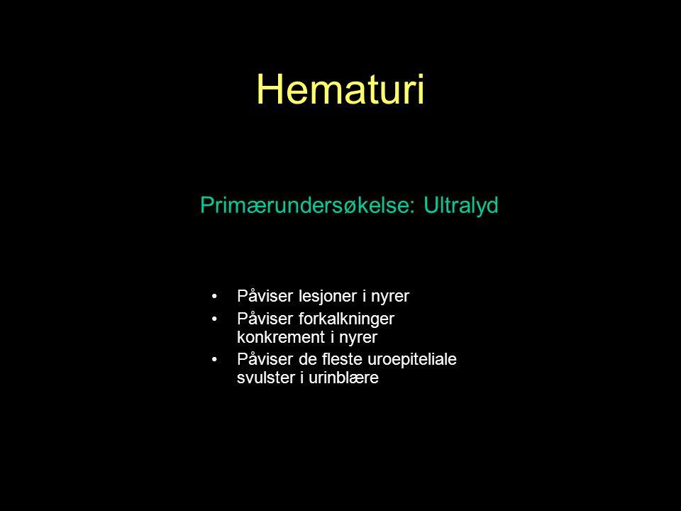 Hematuri Primærundersøkelse: Ultralyd Påviser lesjoner i nyrer Påviser forkalkninger konkrement i nyrer Påviser de fleste uroepiteliale svulster i urinblære