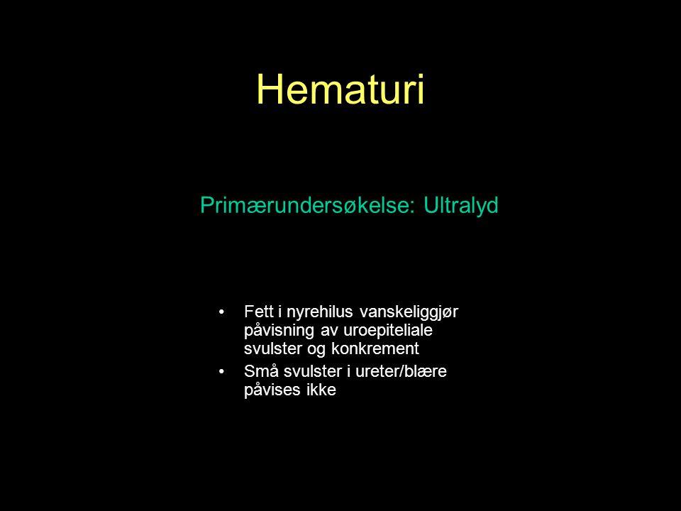 Hematuri Primærundersøkelse: Ultralyd Fett i nyrehilus vanskeliggjør påvisning av uroepiteliale svulster og konkrement Små svulster i ureter/blære påvises ikke