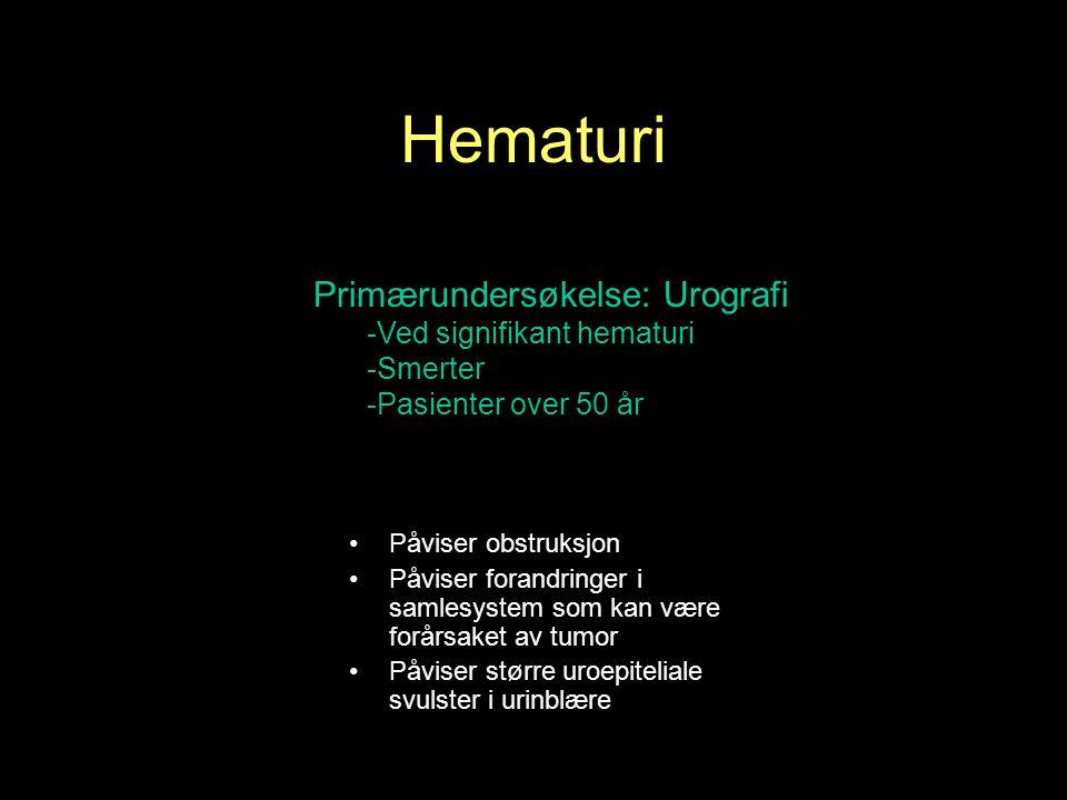 Primærundersøkelse: Urografi -Ved signifikant hematuri -Smerter -Pasienter over 50 år Påviser obstruksjon Påviser forandringer i samlesystem som kan være forårsaket av tumor Påviser større uroepiteliale svulster i urinblære Hematuri