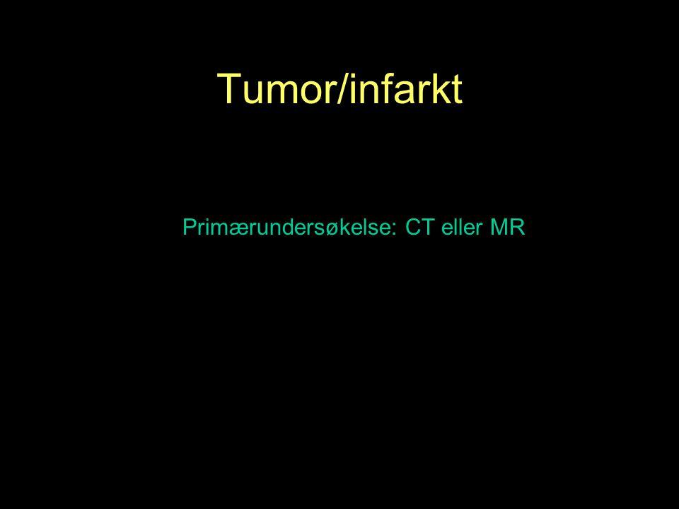 Primærundersøkelse: CT eller MR Tumor/infarkt