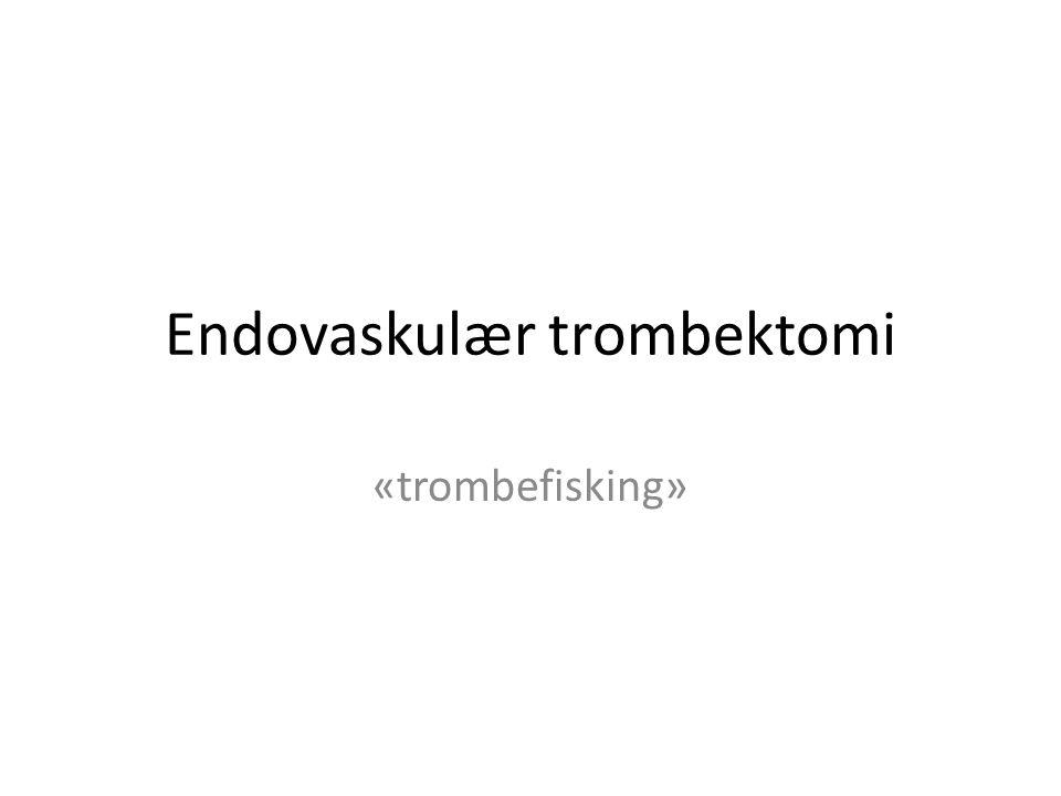 Endovaskulær trombektomi «trombefisking»