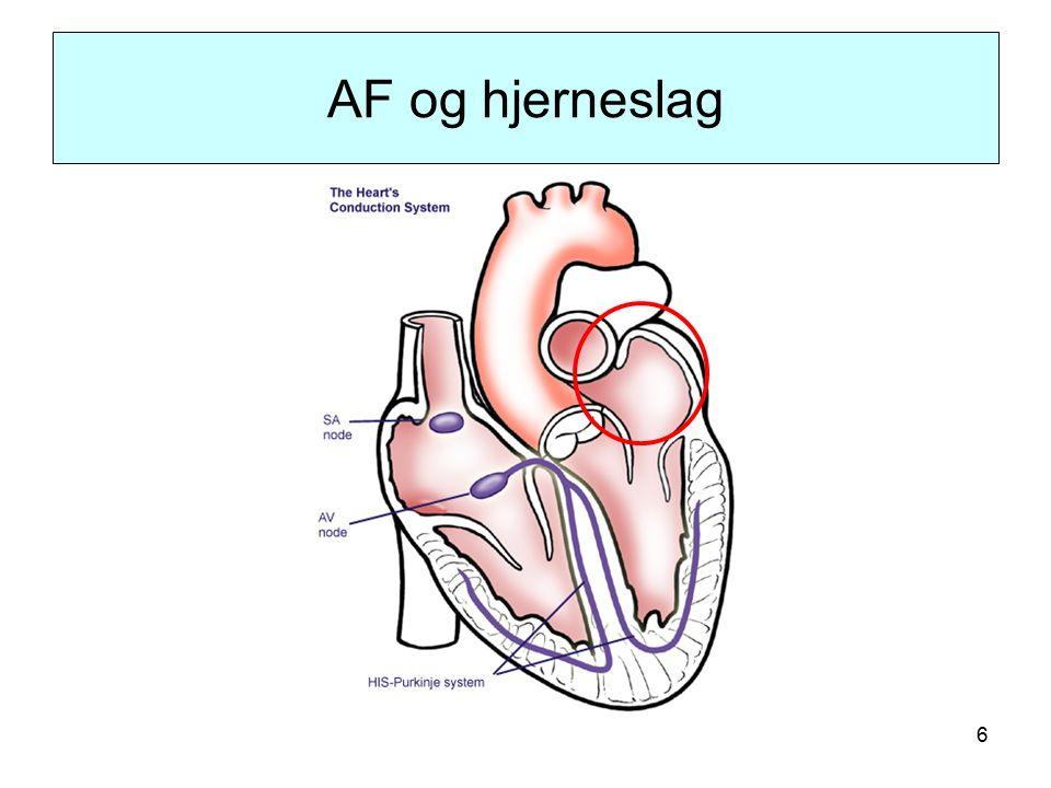 6 AF og hjerneslag