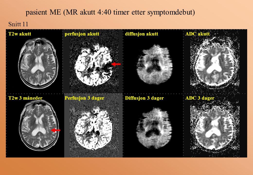 pasient ME (MR akutt 4:40 timer etter symptomdebut) Snitt 11 T2w akutt perfusjon akuttdiffusjon akuttADC akutt ADC 3 dagerDiffusjon 3 dagerPerfusjon 3 dagerT2w 3 måneder