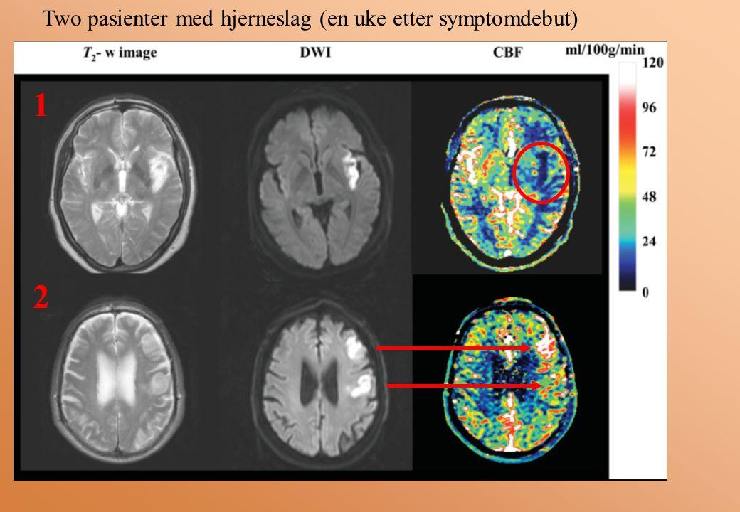 Two pasienter med hjerneslag (en uke etter symptomdebut) 1 2