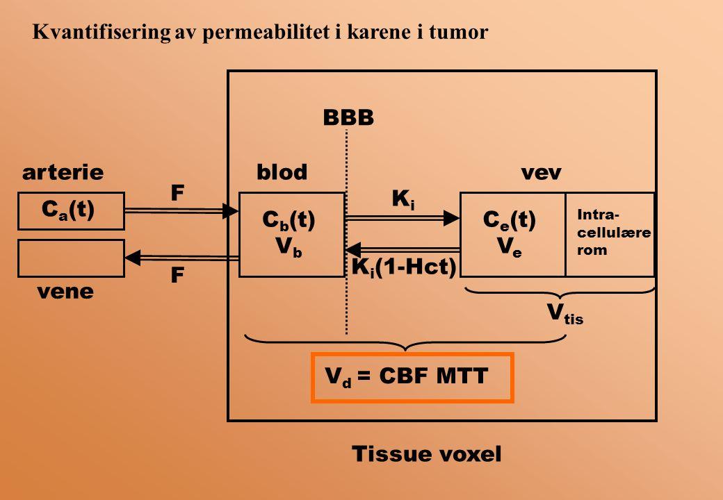 Kvantifisering av permeabilitet i karene i tumor C b (t) V b C e (t) V e KiKi K i (1-Hct) F F blodvevarterie vene C a (t) Intra- cellulære rom V tis BBB V d = CBF MTT Tissue voxel