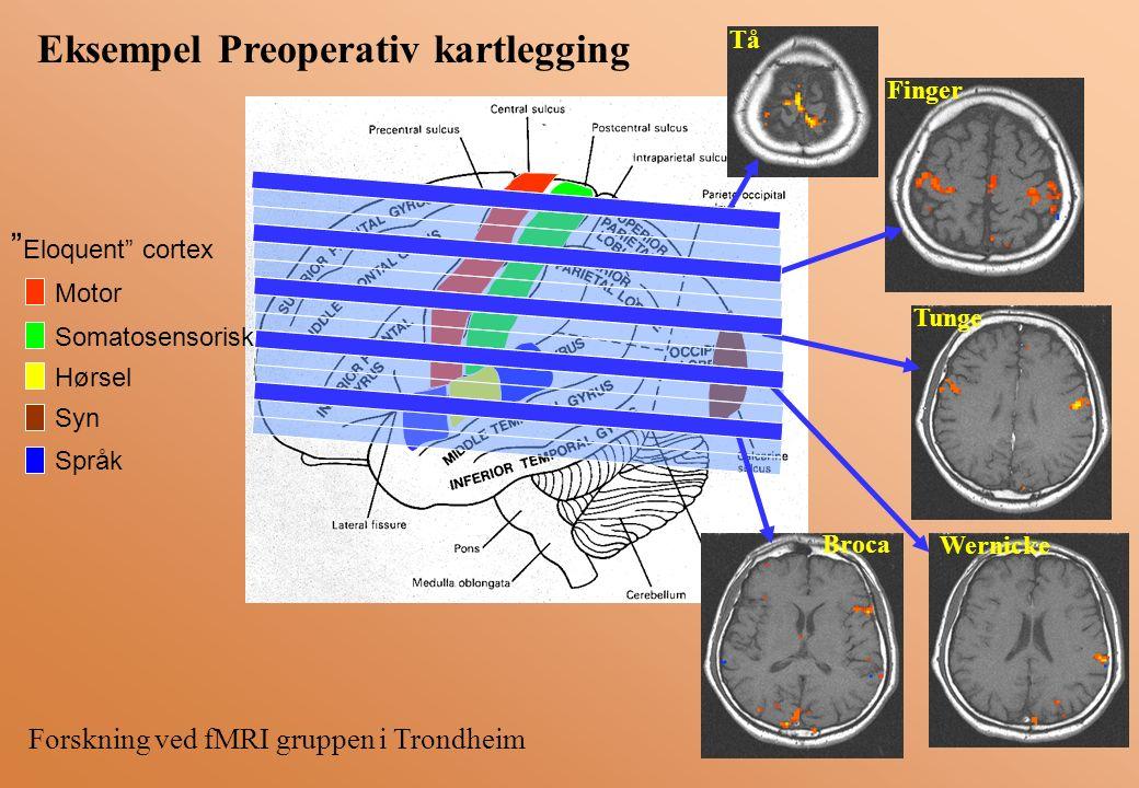 Motor Somatosensorisk Hørsel Syn Språk Eloquent cortex Tå Finger Tunge Wernicke Broca Forskning ved fMRI gruppen i Trondheim Eksempel Preoperativ kartlegging