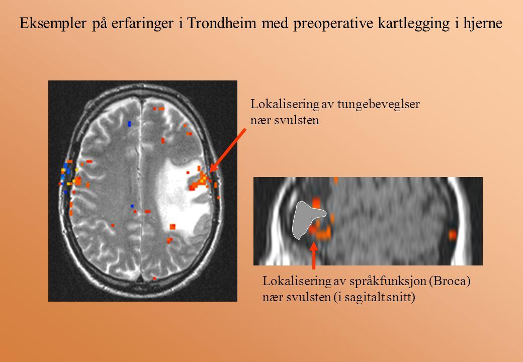 Lokalisering av tungebeveglser nær svulsten Lokalisering av språkfunksjon (Broca) nær svulsten (i sagitalt snitt)