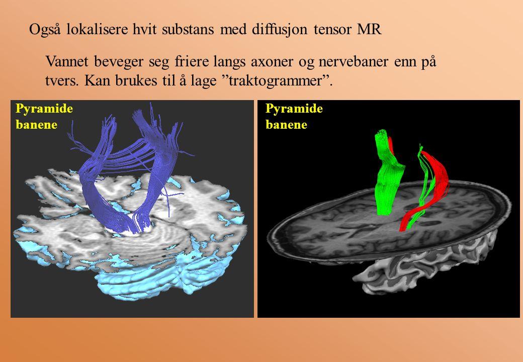 Også lokalisere hvit substans med diffusjon tensor MR Vannet beveger seg friere langs axoner og nervebaner enn på tvers.