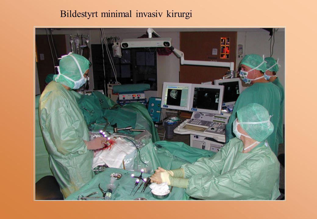 Bildestyrt minimal invasiv kirurgi