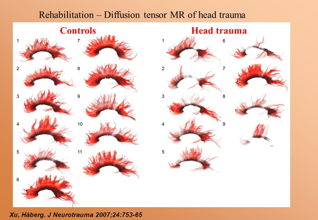 Controls Xu, Håberg. J Neurotrauma 2007;24:753-65 Rehabilitation – Diffusion tensor MR of head trauma Head trauma