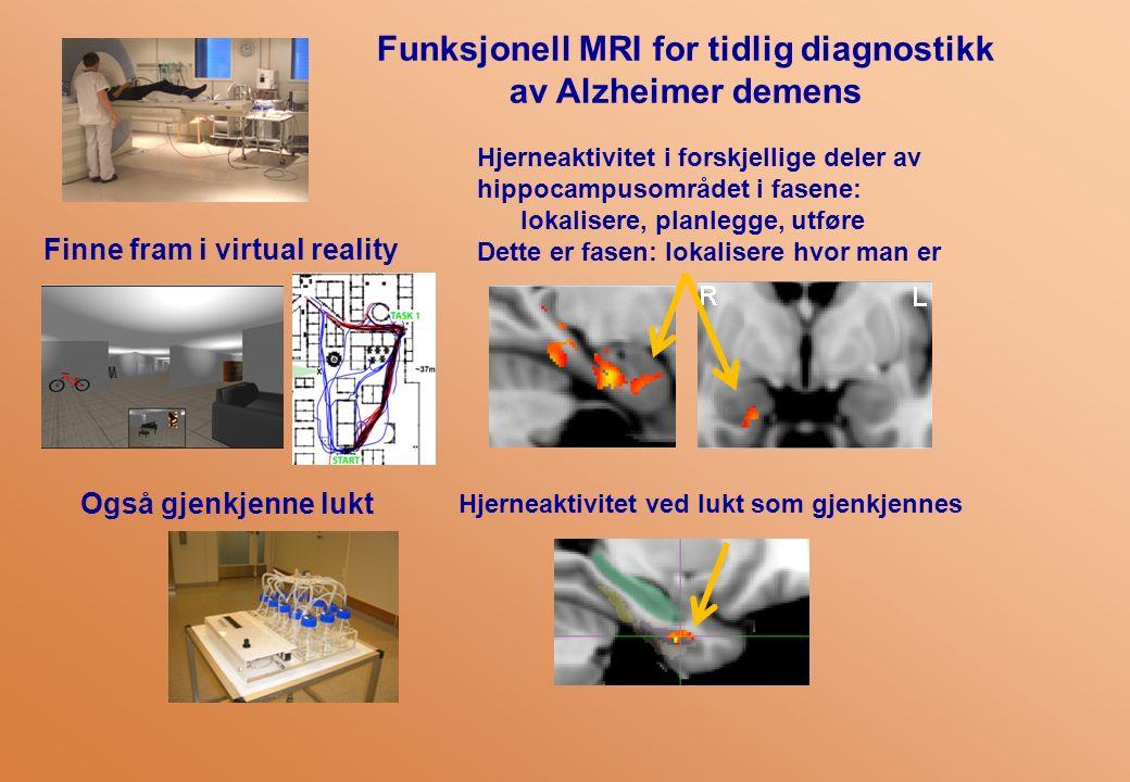 Funksjonell MRI for tidlig diagnostikk av Alzheimer demens Finne fram i virtual reality Hjerneaktivitet i forskjellige deler av hippocampusområdet i fasene: lokalisere, planlegge, utføre Dette er fasen: lokalisere hvor man er Også gjenkjenne lukt Hjerneaktivitet ved lukt som gjenkjennes