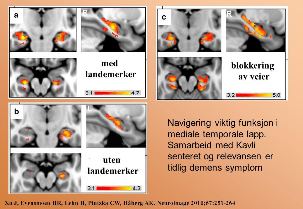 Xu J, Evensmoen HR, Lehn H, Pintzka CW, Håberg AK.