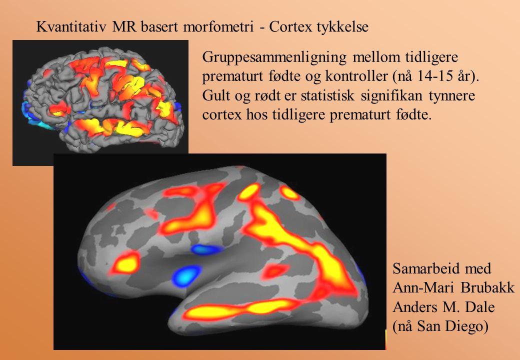 Kvantitativ MR basert morfometri - Cortex tykkelse Gruppesammenligning mellom tidligere prematurt fødte og kontroller (nå 14-15 år).