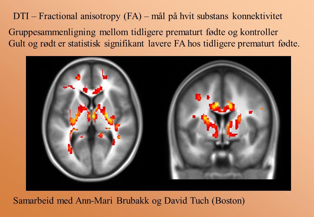 RLRL Gruppesammenligning mellom tidligere prematurt fødte og kontroller Gult og rødt er statistisk signifikant lavere FA hos tidligere prematurt fødte.
