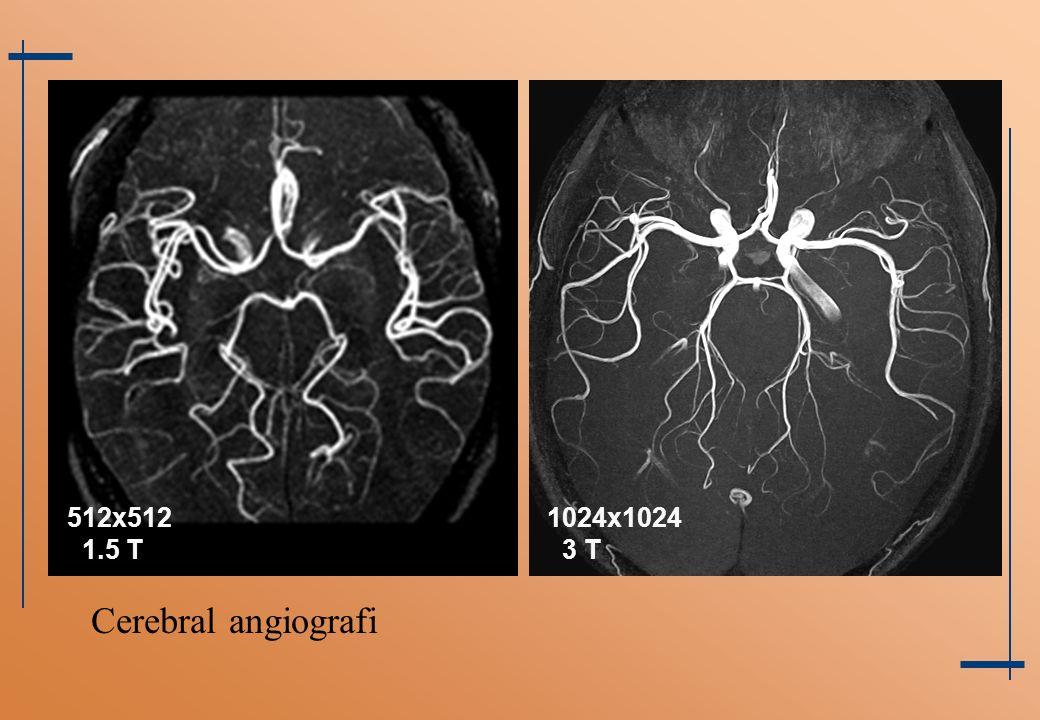1024x1024 3 T 512x512 1.5 T Cerebral angiografi