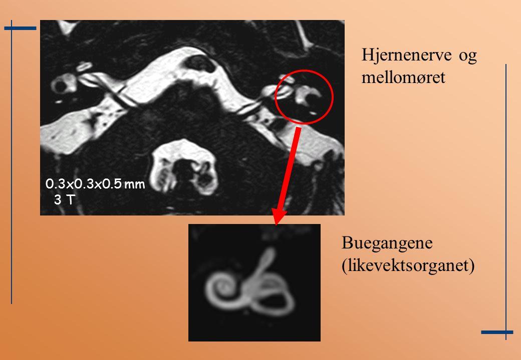 0.3x0.3x0.5 mm 3 T Hjernenerve og mellomøret Buegangene (likevektsorganet)