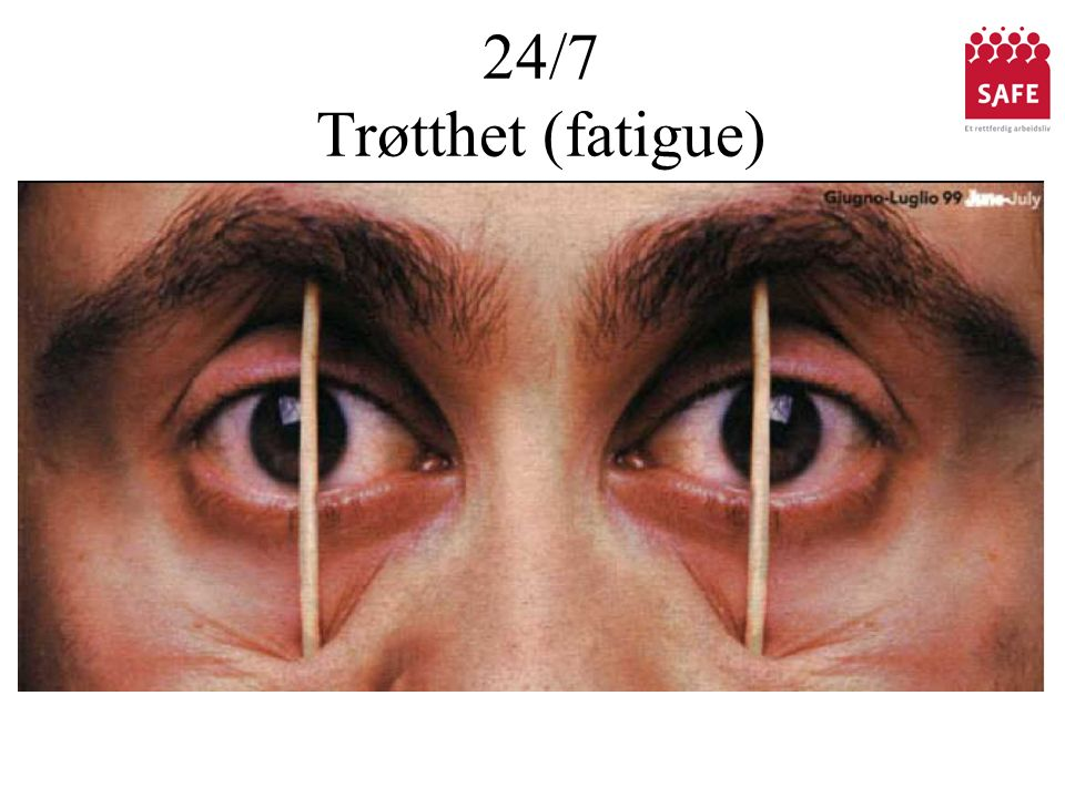 24/7 Trøtthet (fatigue)