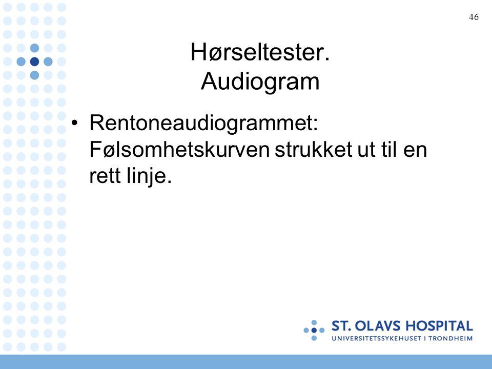 46 Hørseltester. Audiogram Rentoneaudiogrammet: Følsomhetskurven strukket ut til en rett linje.