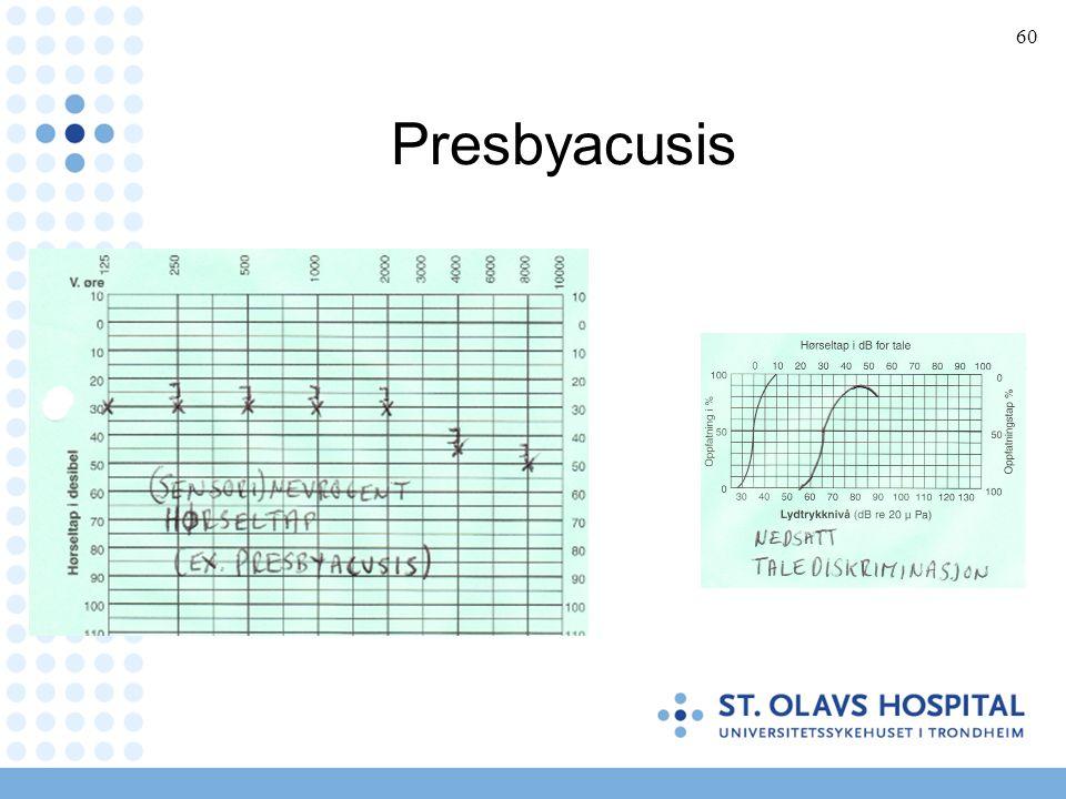 60 Presbyacusis