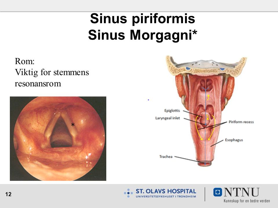 12 Sinus piriformis Sinus Morgagni* Rom: Viktig for stemmens resonansrom