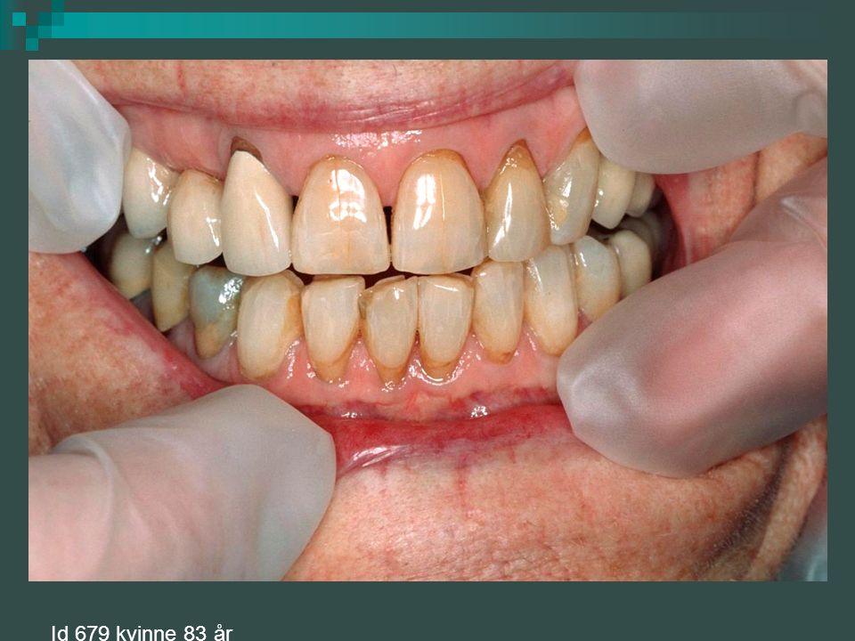 Lichenoide reaksjoner Klinisk bilde: hvite striper, flekker og røde erosive områder.Kan være reaksjon på legemidler som antihypertensiva, hypoglycemics og NSAID Dentale materialer