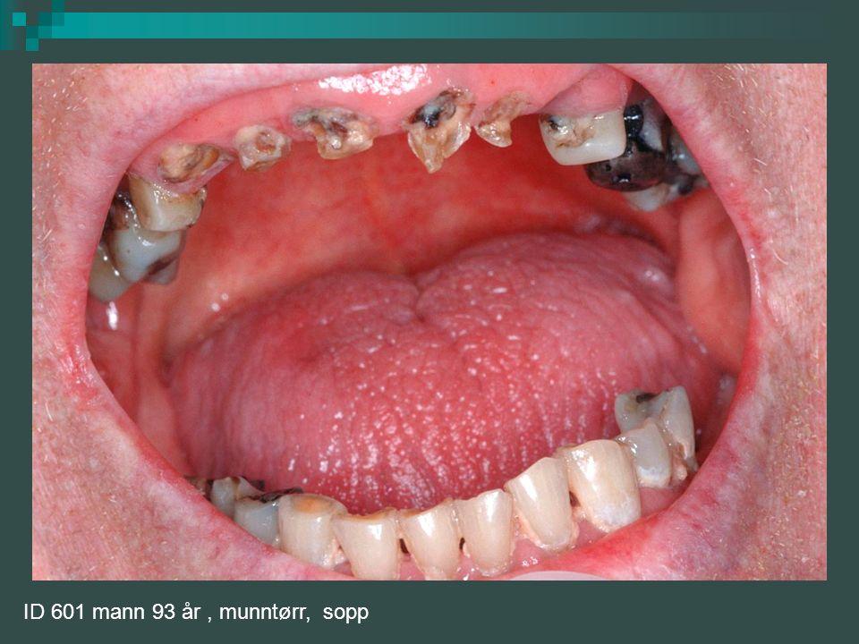 Orale komplikasjoner ved munntørrhet: Tørre og såre slimhinner Rød, atrofisk tunge Hovne spyttkjertler Oral candidose Burning mouth Karies Protesegnag Løse proteser Svelgproblemer Spiseproblemer Taleproblemer Redusert smakssans