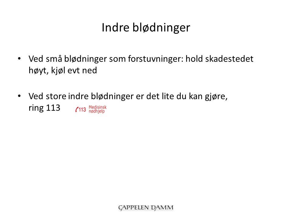 Indre blødninger Ved små blødninger som forstuvninger: hold skadestedet høyt, kjøl evt ned Ved store indre blødninger er det lite du kan gjøre, ring 113