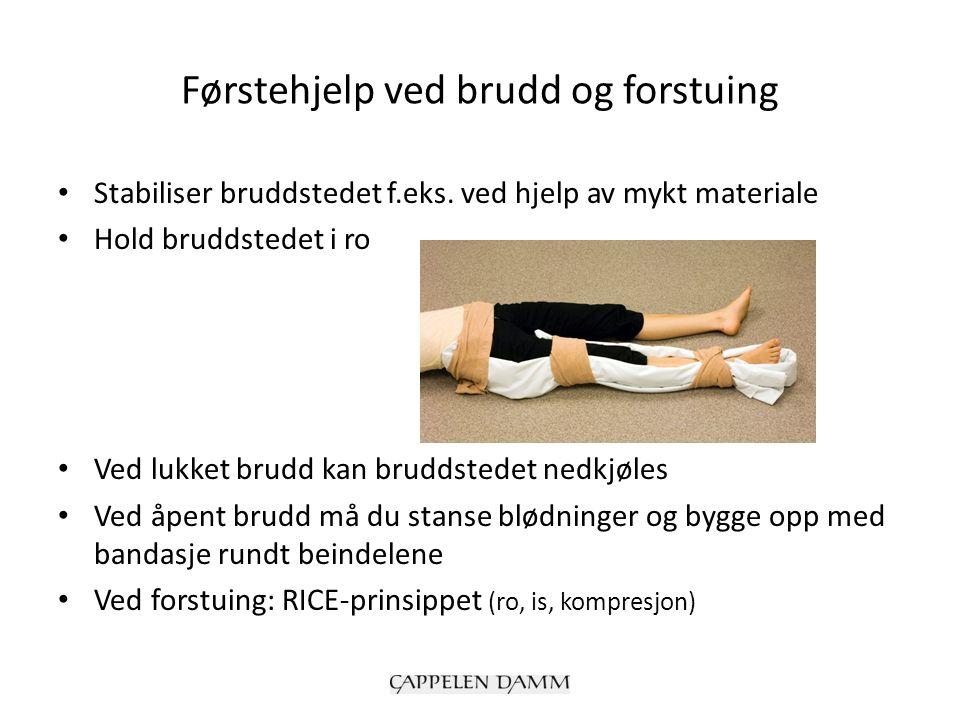 Førstehjelp ved brudd og forstuing Stabiliser bruddstedet f.eks.