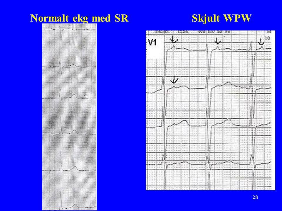 28 Normalt ekg med SR Skjult WPW