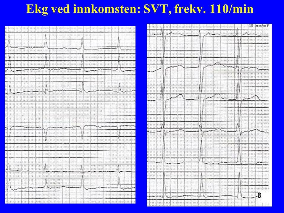 8 Ekg ved innkomsten: SVT, frekv. 110/min