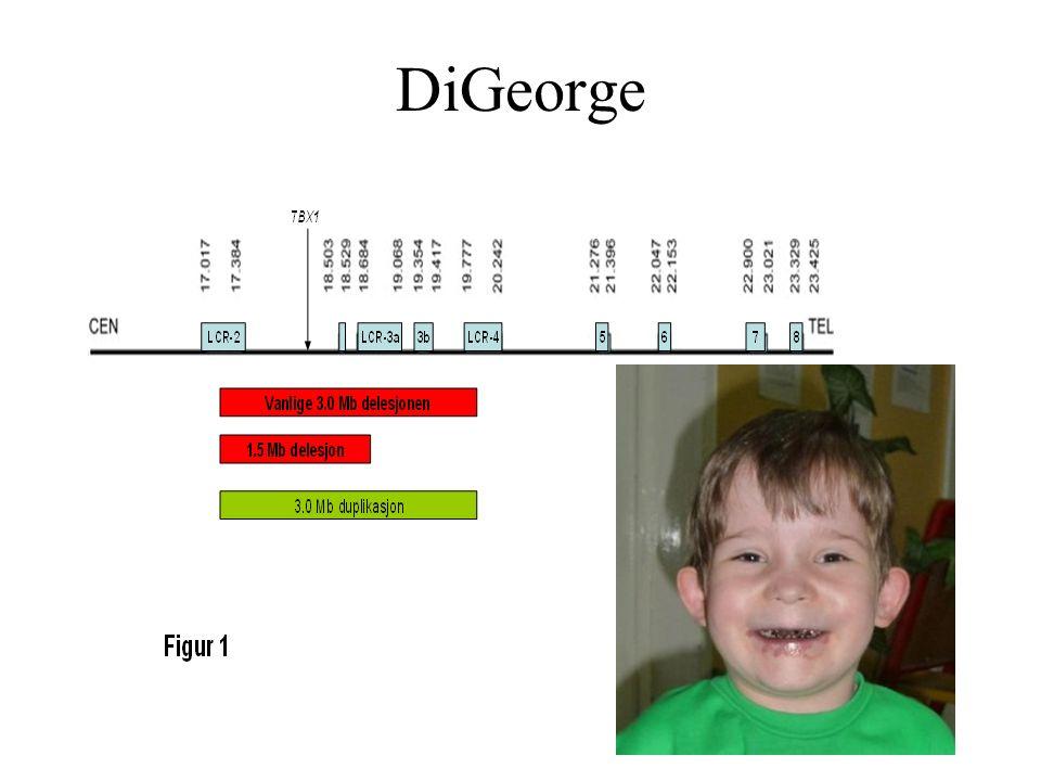 DiGeorge