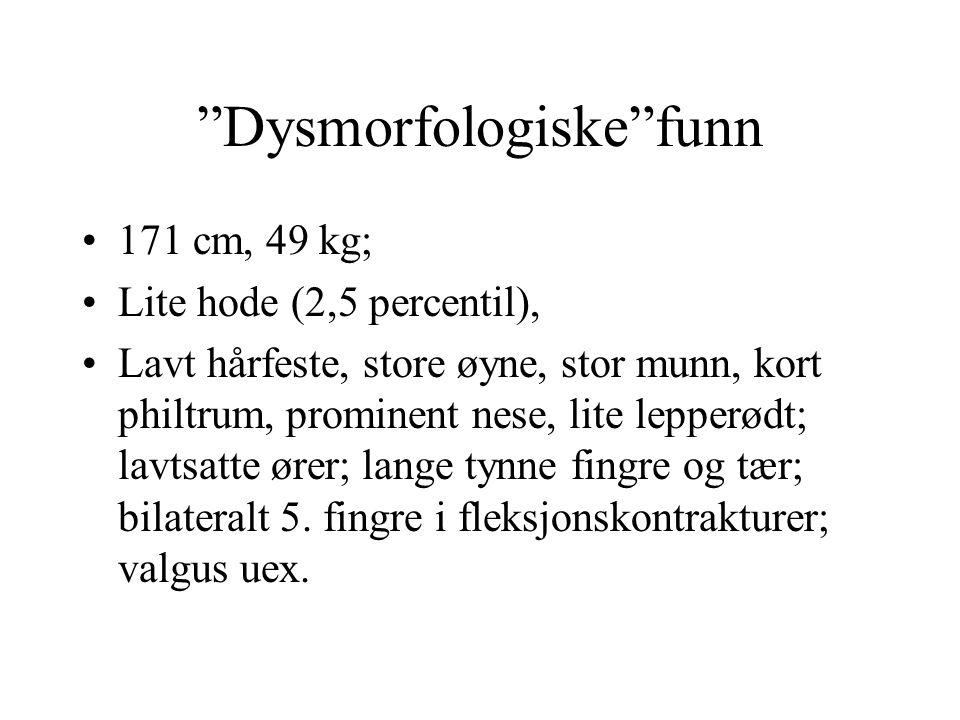 """""""Dysmorfologiske""""funn 171 cm, 49 kg; Lite hode (2,5 percentil), Lavt hårfeste, store øyne, stor munn, kort philtrum, prominent nese, lite lepperødt; l"""