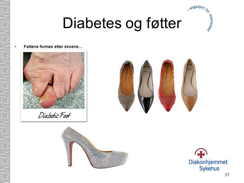 57 Diabetes og føtter Føttene formes etter skoene....